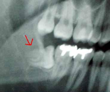 歯医者さん02.jpg